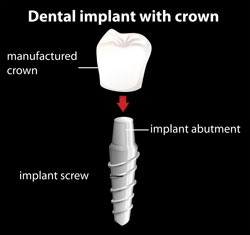 Dental Implants | Kenneth Yates DDS | Beverly Hills, CA 90212